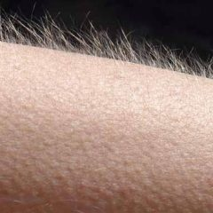Why do we get goose bumps when we are cold?